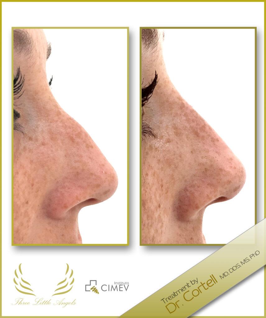 medicina estetica facial valencia