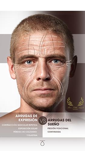 Rejuvenecimiento facial para hombres